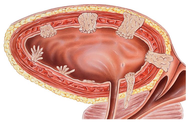 Šlapimo pūslės vėžys