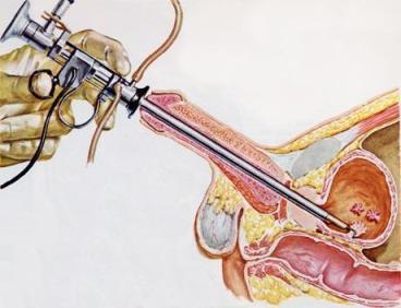 slapimo-pusles -vezio-gydymas