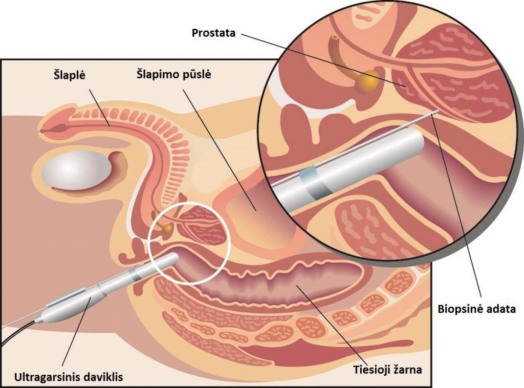 Prostatos vėžys - Prostatos biopsija