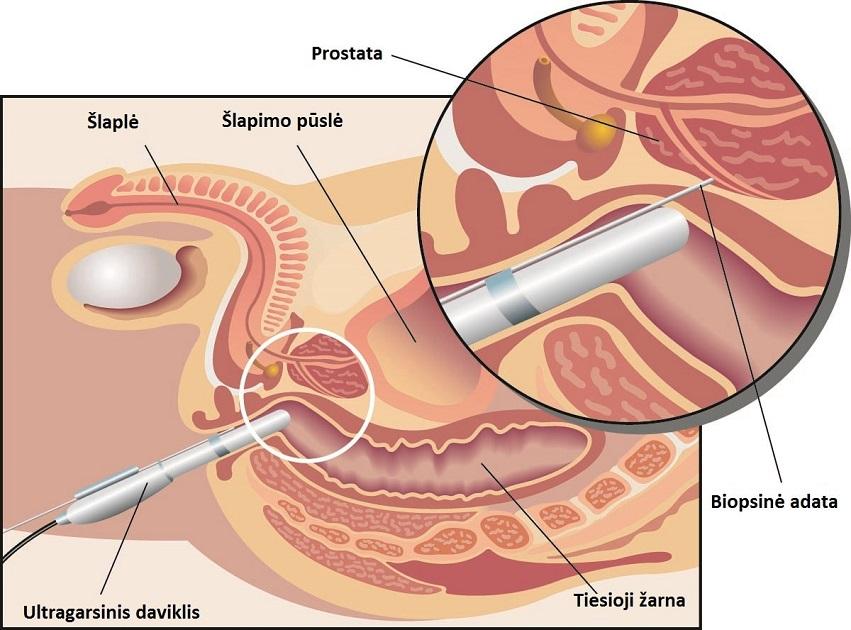 vyrų erekcijos mechanizmas yra erekcija, bet ji išnyksta