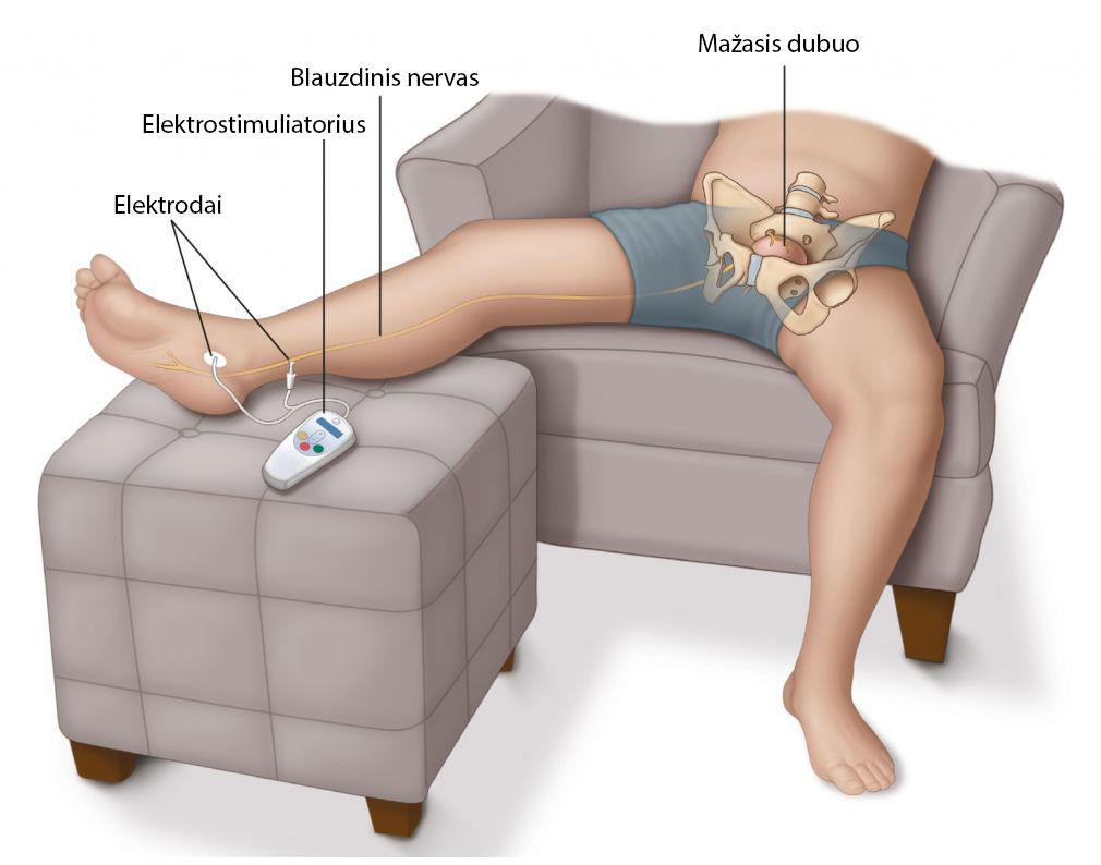 letinio prostatito gydymas neurostimuliacija