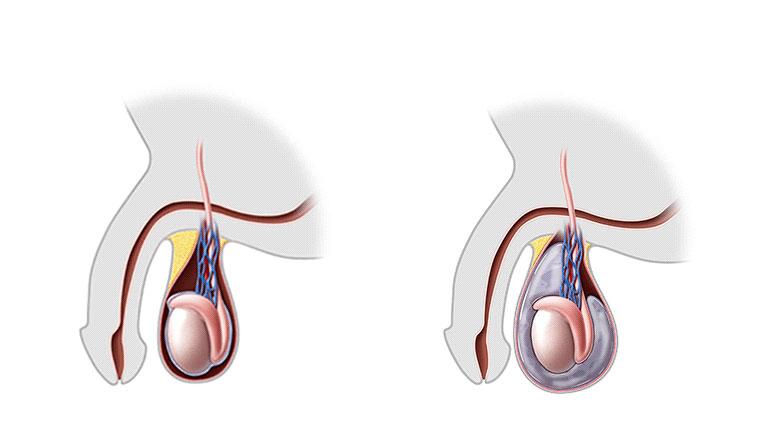 erekcijos metu sėklidė įtempiama